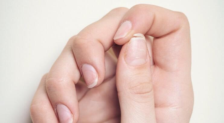 傷んでいる爪